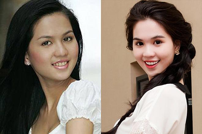 <p> Ngọc Trinh cũng từng sở hữu hàm răng xỉn màu hồi mới vào nghề. Vẻ ngoài của cô thêm hoàn thiện sau khi chỉnh sửa răng.</p>