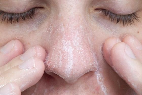 Rửa mặt quá nhiều sẽ khiến việc chữa trị mụn kéo dài. (Ảnh minh họa)