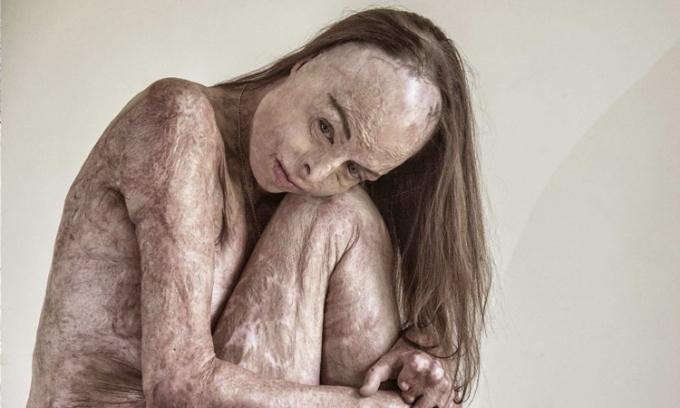 Một bức chụp Carol Mayer trong bộ ảnh The Skin Im In. Ảnh: Portraitofhumanity.