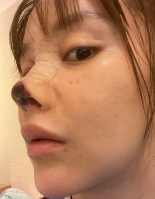 Cao Lưu đăng ảnh gương mặt sau khi thẩm mỹ hỏng. Ảnh: Weibo/Gaoliu.